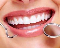 Gülüş Tasarımı (Diş Estetiği)
