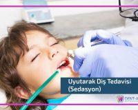 Sedasyon Diş Tedavisi İle İlgili Sık Sorulan Sorular